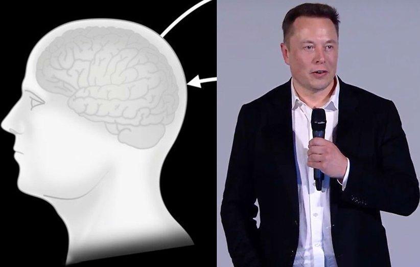 ایلان ماسک توسط نورالینک هوش مصنوعی را با مغز انسان پیوند می دهد